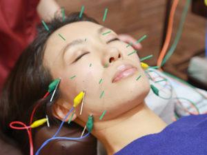 美容鍼施術写真